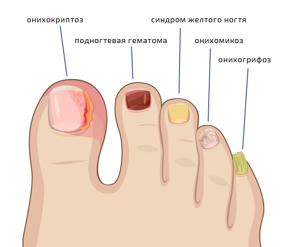Как лечить болячки на ногах 4